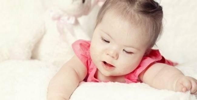 L'allaitement d'un bébé atteint du syndrome de Down