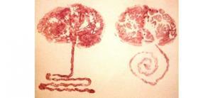 Placenta : Zoom sur cet organe unique et temporaire
