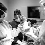 Une nouvelle étude permettrait de diminuer le nombre de césariennes