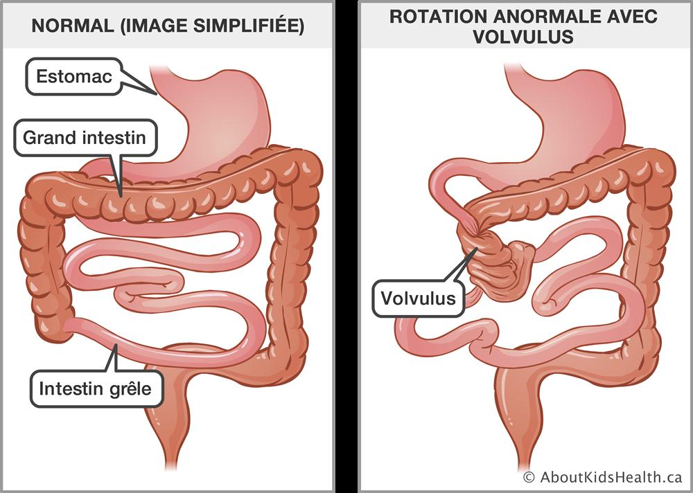 Savoir reconnaître une occlusion intestinale chez l'enfant
