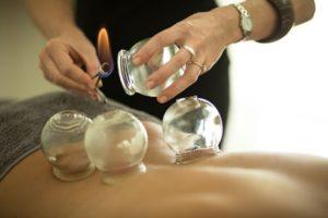 grossesse-ventouse-cupping-therapie-soin-hijama-naturel-femme-enceinte