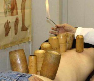 grossesse-ventouse-cupping-therapie-soin-hijama-naturel-femme-enceinte-